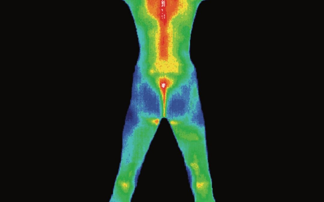 Medical Thermography – What are the benefits of having a thermogram done?